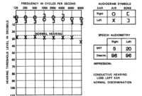 1000 Images About Audiology On Pinterest Pitch Cochlear intended for Blank Audiogram Template Download